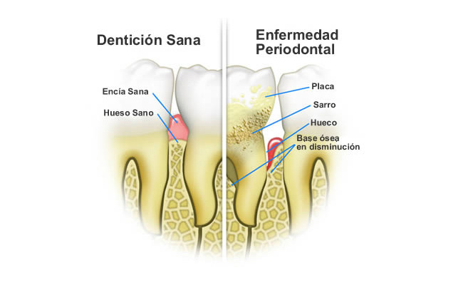 dentaelen-periodoncia-02