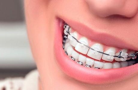 ortodoncia-mixta-metalicos-zafiro-640x300