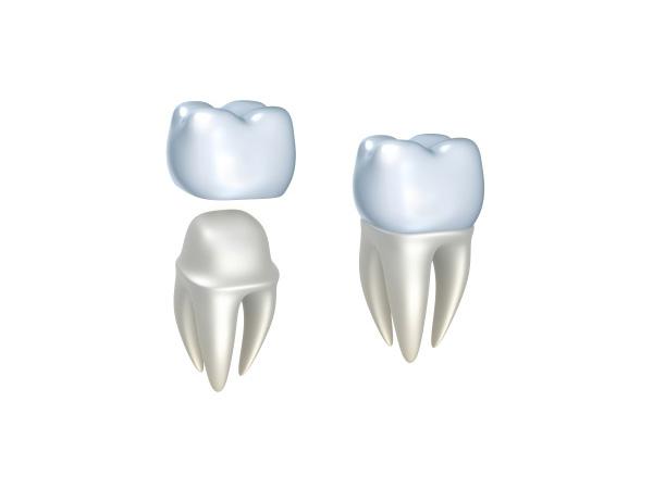 dentaelen-esteticadental-03